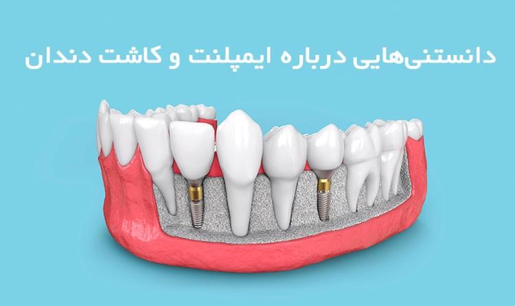 دانستنیهایی درباره ایمپلنت و کاشت دندان